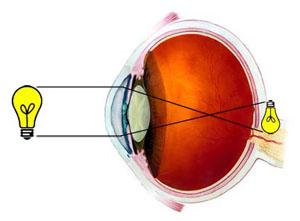 ďalekozrakosť